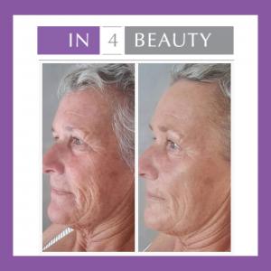 fruitzuurpeeling voor en na - bindweefselmassage gezicht
